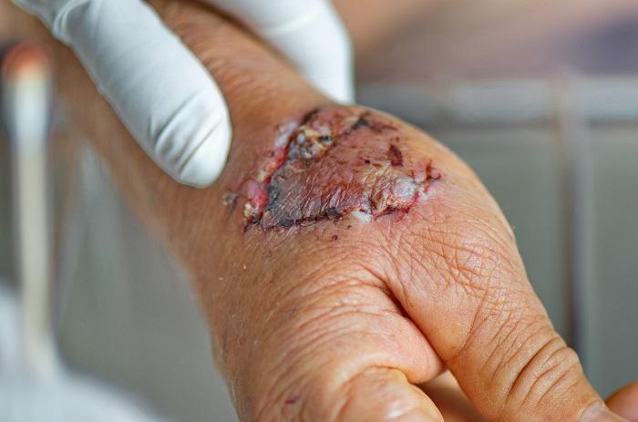 Dog bite injury in Columbus Ohio